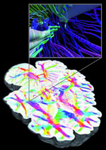 Three-dimensional polarized light imaging (3D-PLI) of a postmortem human brain at a sub-millimeter resolution (courtesy Forschungszentrum Jülich)